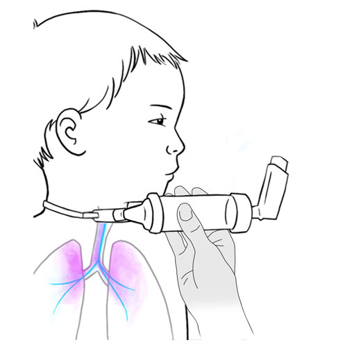 529.metered dose inhaler vapor in lungs.FINAL